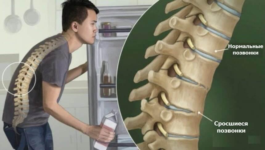 Болезнь Бехтерева и боль в спине по утрам