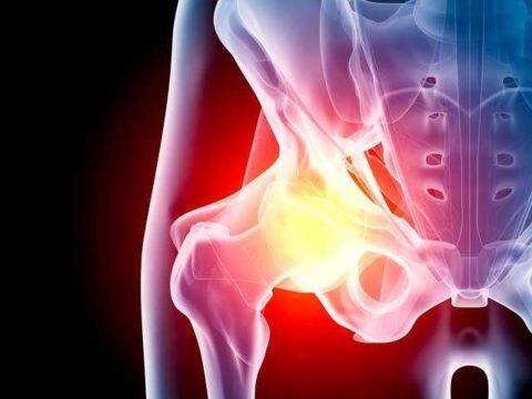 Большой риск развития воспалительного процесса существует при открытых переломах с нарушением целостности кожных покровов.