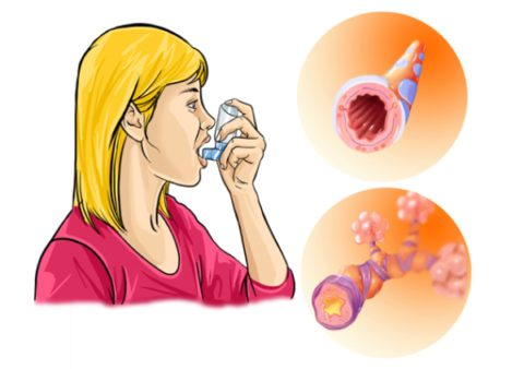 Бронхиальная астма - хроническое заболевание прогрессирующим течением и периодическими приступами удушья