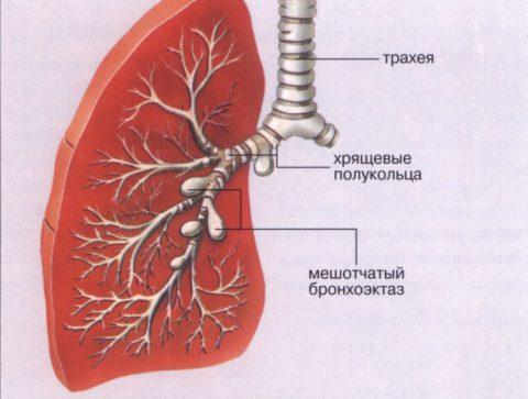 Бронхоэктазы после туберкулеза