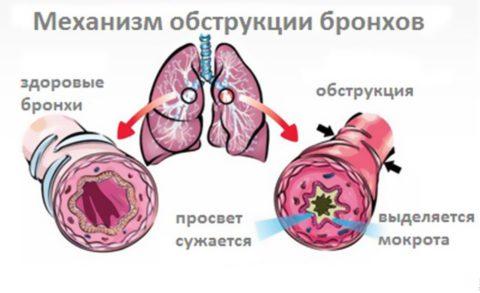 Бронхообструктивный синдром многократно осложняет течение острого бронхита у детей (на фото)