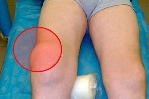 Эпикондилит сустава колена