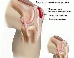 Болит колено по ночам