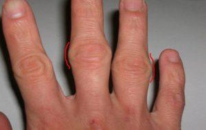 Деформация суставов пальцев на руках