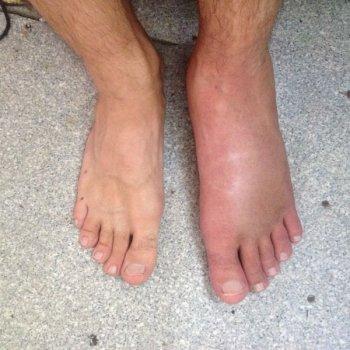 На фото хорошо заметен отек ноги пострадавшего