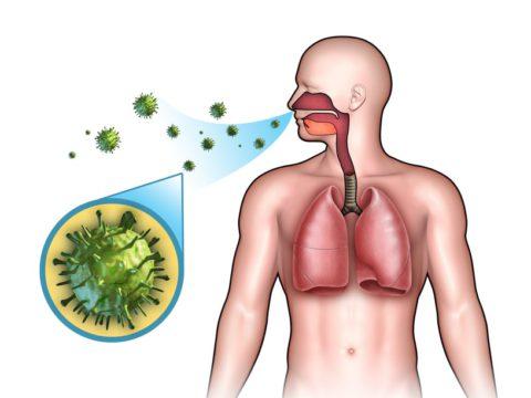 Чаще всего болезнь вызвана вирусными респираторными инфекциями