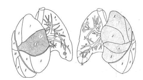 Чем распространеннее туберкулезное поражение, тем ярче клиническая картина