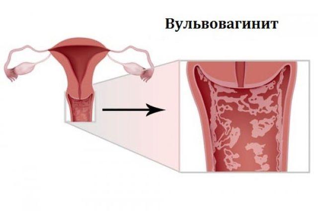 Чешутся половые губы при вульвовите