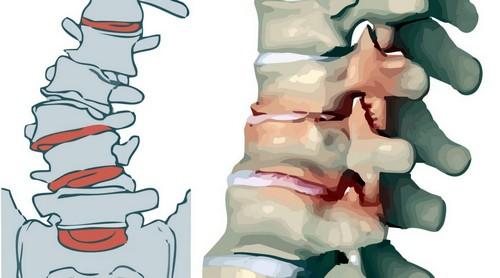 дорсопатия пояснично крестцового отдела позвоночника лечение