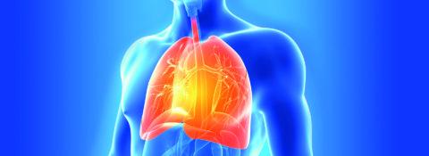 Что такое бронхопневмония?