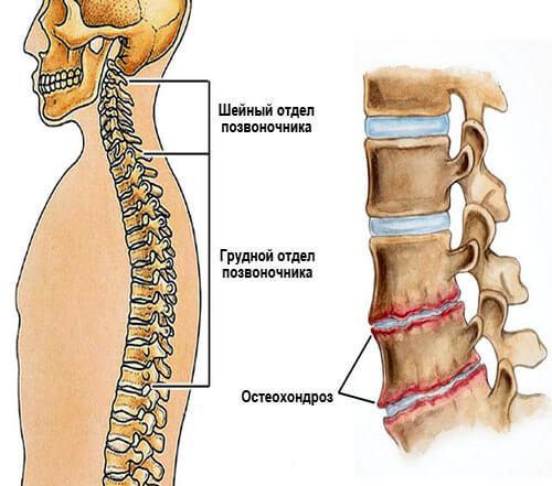 Как выглядит грудной остеохондроз