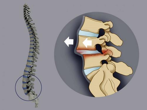 болят мышцы спины в области поясницы