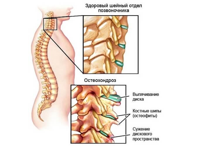 боль под лопатками сзади со спины причины лечение