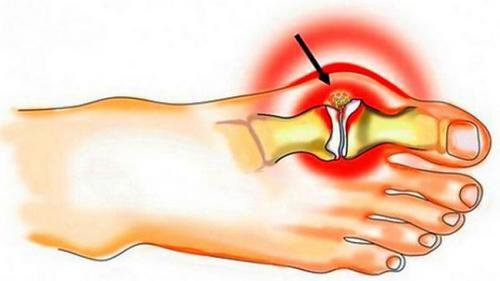 Подагра - причина боли в спине, пояснице и ногах