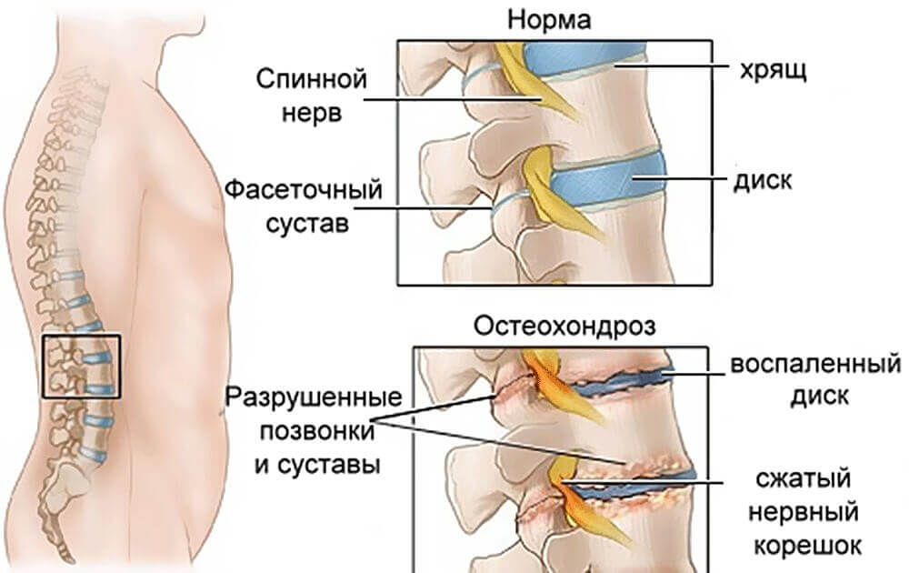 поясничный остеохондроз болезни поясничного отдела позвоночника