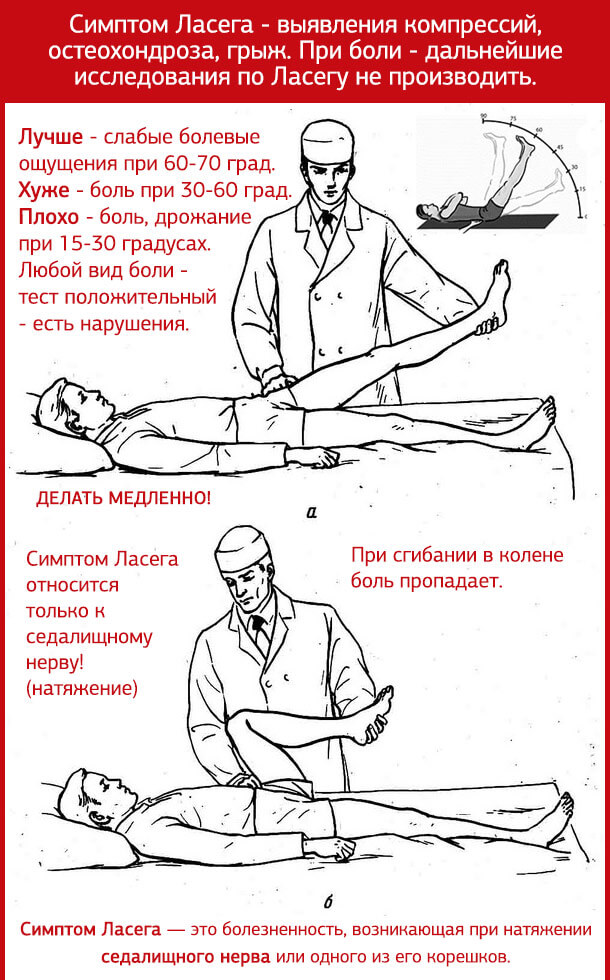 остеохондроз 2 степени поясничного отдела позвоночника и симптом Ласега