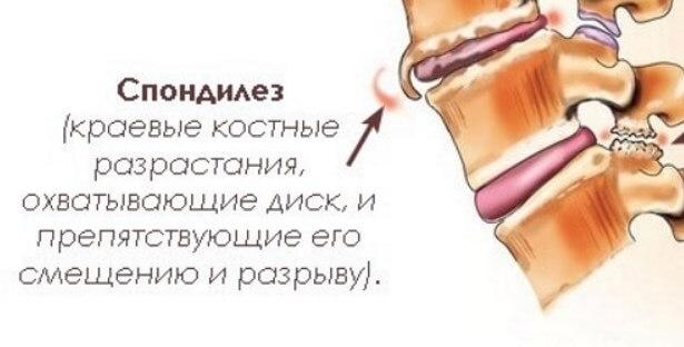 Спондилёз - причина острой боли в пояснице