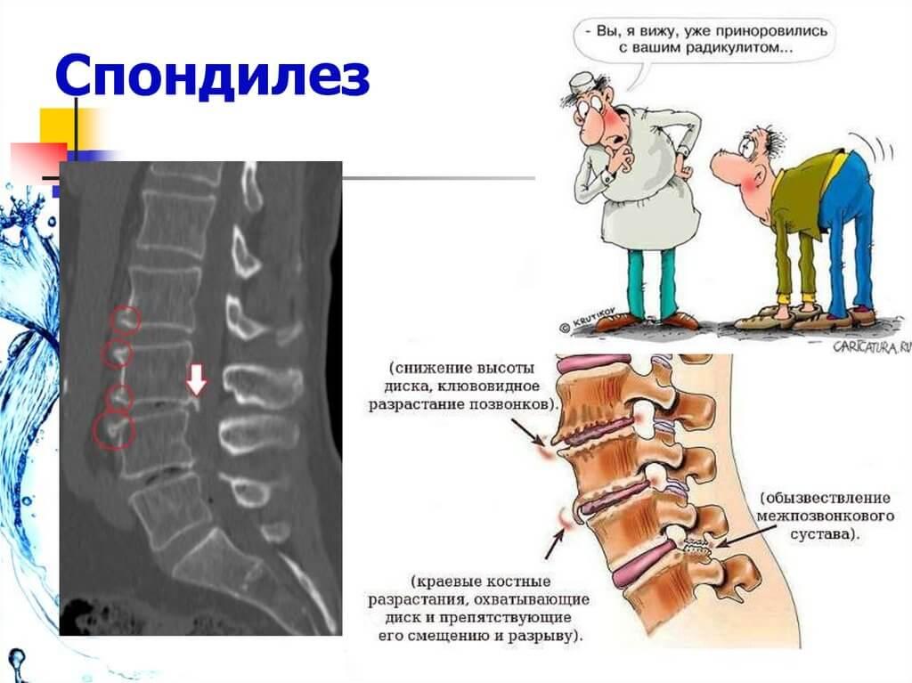 болит спина в области поясницы причины у мужчин