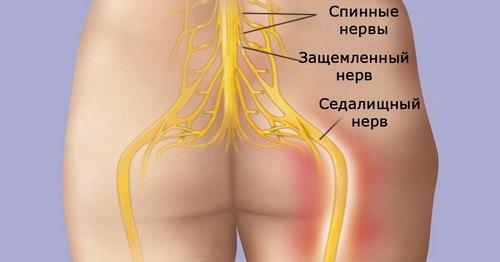 боль в спине при стоянии