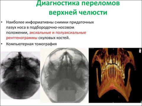Чтобы подтвердить вид травмы больному проводят ряд диагностических мероприятий.