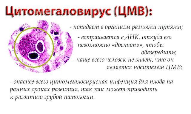 Цитомегаловирус признаки