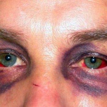 Синдром очков или «глаза енота» - расположение гематом в области глаз при травмах носа