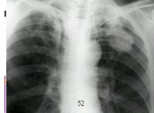 Микобактерии туберкулеза: биологические свойства и важные особенности жизнедеятельности