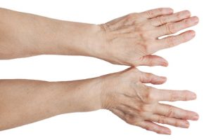 Артрит на пальцах рук