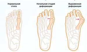 Молоткообразный палец на ноге