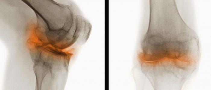 Дегенеративные дистрофические изменения суставов
