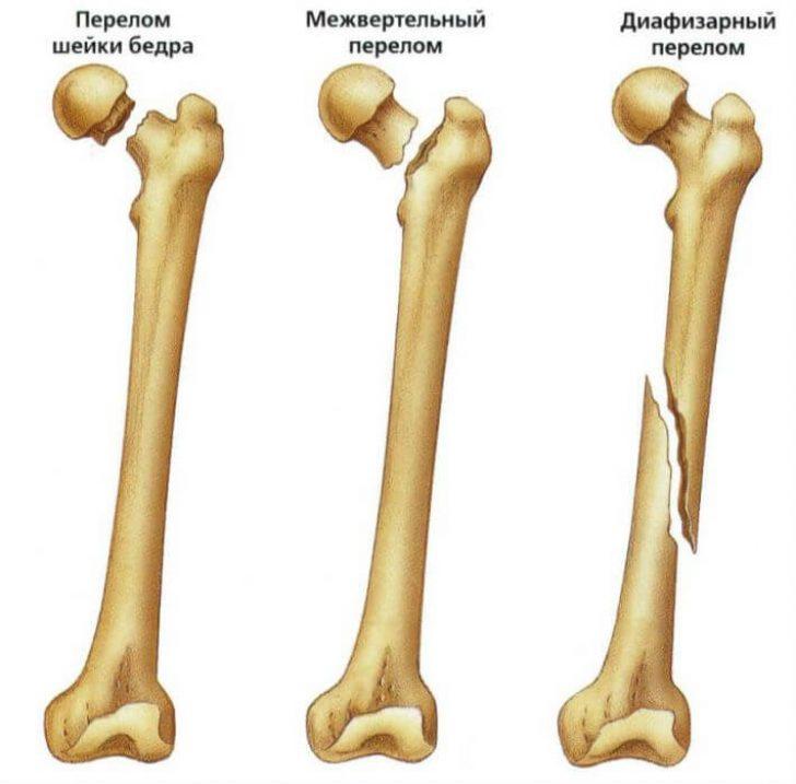 Диафизарные переломы бедра: симптомы, виды, причины, особенности первой помощи и лечения