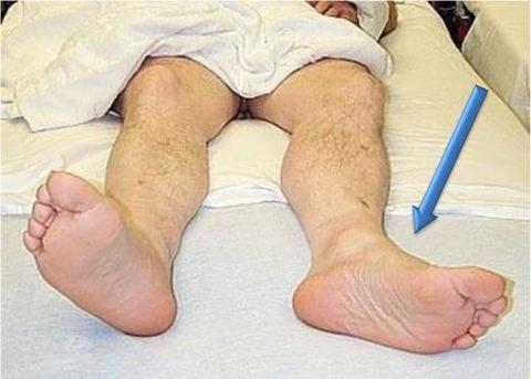 Диагностика переломов в тазобедренном суставе