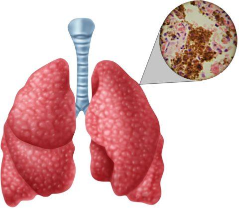 Длительное течение заболевания без должного лечения приводит к развитию кахексии.