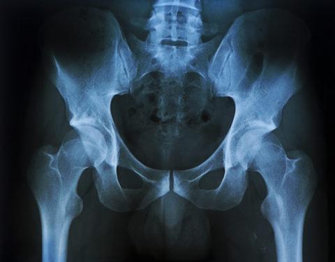 Для дифференциальной диагностики применяют рентгенологическое обследование