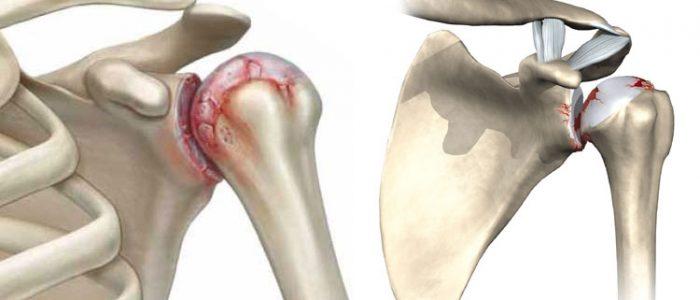 Деформирующий остеоартроз плечевого сустава