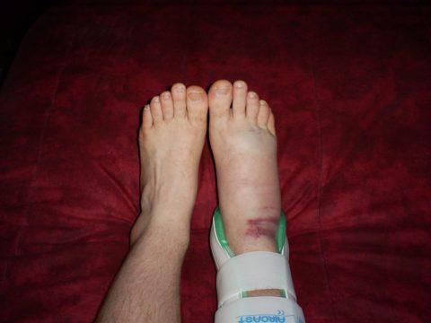 Если после наложения фиксатора нога продолжает сильно отекать и изменила цвет, чувствуется сильный дискомфорт, возможно, фиксирующее средство было неправильно подобрано.