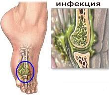 Если при развитии патпроцесса были затронуты и костные ткани, то возникает инфекционный остеомиелит