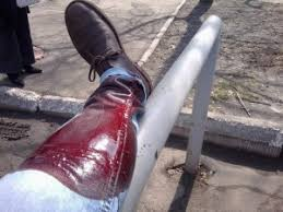 Если при травме были задеты магистральные сосуды, то возникает реальная угроза для жизни пострадавшего.