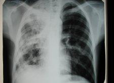 Казеозная пневмония: нетипичное течение туберкулеза