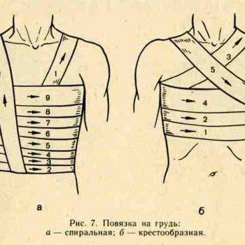 Тугое бинтование наиболее часто используют при травмах груди