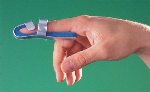 Фиксация поврежденного пальца после травмы
