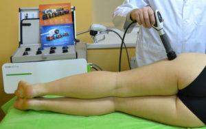 Почему умирают от перелома шейки бедра: осложнения травмы