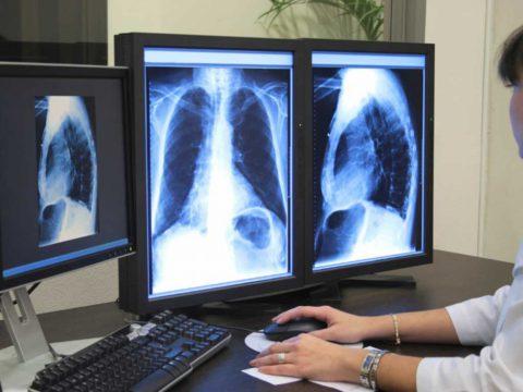 На флюорограмме видно, что не так со здоровьем