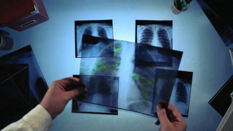 Флюорография и бактериологический анализ мокроты — основные способы подтверждения диагноза
