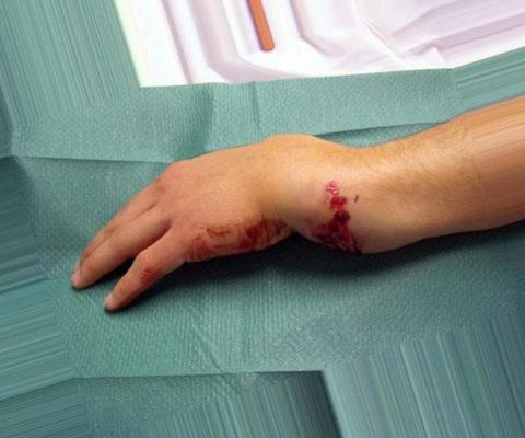 Формирование подкожных кровоизлияний из-за сильного удара