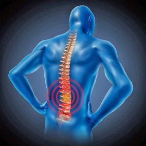 Симптомы и лечение болезни Бехтерева у мужчин