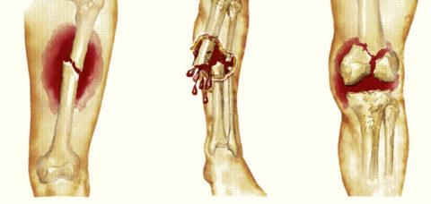Фото: как выглядит нарушенная целостность кости