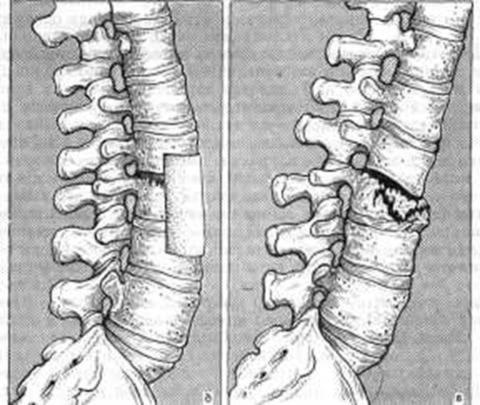 Фото: особенности нарушения целостности костных позвонков