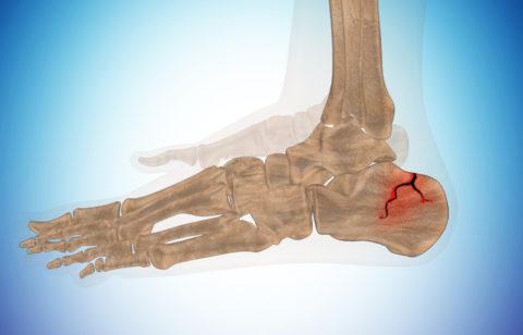 Фото: симптоматические проявления, свидетельствующие о повреждении пяточной кости