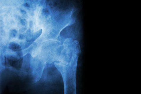 Фото: скорость восстановления костных фрагментов при переломе шейки бедра